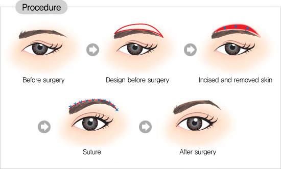 Nâng mí mắt không đau để có đôi mắt đẹp hoàn hảo