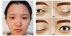 Hiểu đúng về dịch vụ cắt mí mắt Hàn Quốc