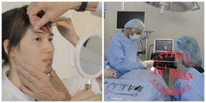 Phẫu thuật cắt da mí mắt được thực hiện như thế nào?