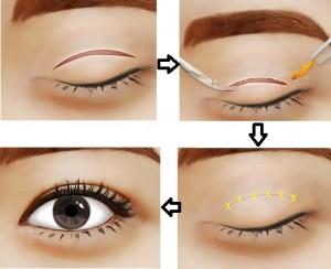 Cắt mỡ mí mắt có nguy hiểm không?