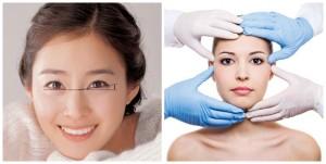 Kết quả cắt mí mắt Hàn Quốc duy trì trong thời gian bao lâu?