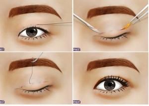 Cắt mí mắt có để lại sẹo không? Chăm sóc sau phẫu thuật thế nào?