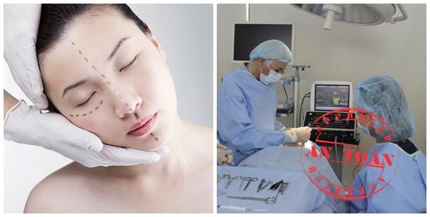 Cắt mí mắt an toàn với kĩ thuật cắt mí mắt Hàn Quốc