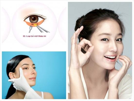 Cắt mỡ mí mắt theo kĩ thuật Hàn Quốc mang lại đôi mắt trẻ trung như ý