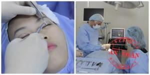 Cắt mắt 2 mí Hàn Quốc có để lại biến chứng gì không?