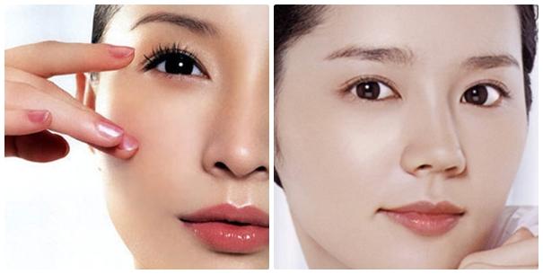 Sau khi cắt mí mắt, mắt bạn có thể bị sưng nhẹ
