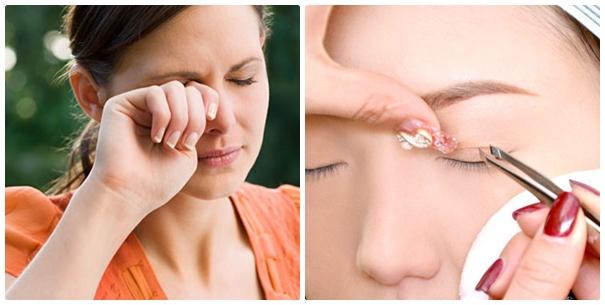 Miếng dán kích mí có thẩy gây nhiều bệnh có hại cho mắt