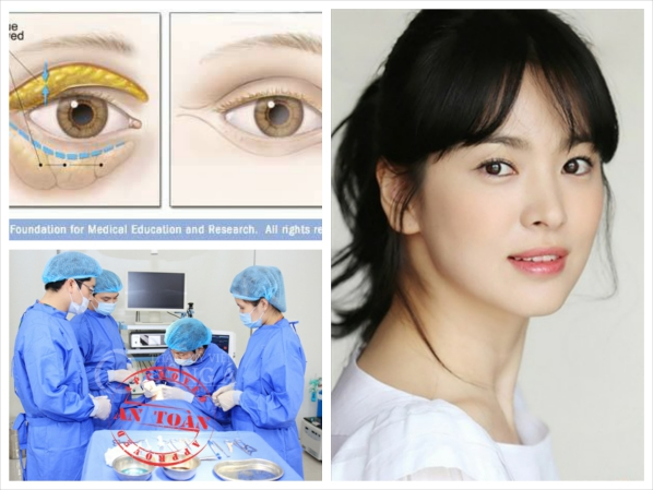 Lấy mỡ mí mắt Hàn Quốc là giải pháp an toàn, hiệu quả