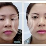 Phân tích nguyên nhân mí mắt bị sụp và giải pháp chữa trị dứt điểm