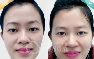 Cắt mí mắt 3 trong 1CN Hàn Quốc – bước đột phá trong phẫu thuật thẩm mỹ