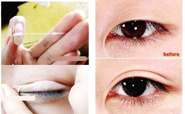 chỉ kích mí mắt làm mắt to đẹp