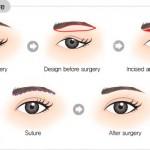 Chuyên gia phân tích nguyên nhân da chùng mí mắt và cách chữa trị