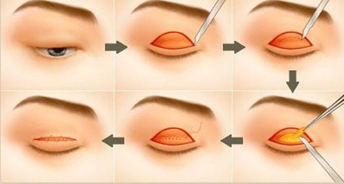 Cần chú ý gì khi cắt mắt 2 mí?