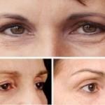 Tìm hiểu về phẫu thuật cắt mắt 2 mí tại TMV Đông Á