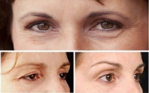 Sụp mi mắt ở người già – Làm sao để khắc phục hiệu quả?
