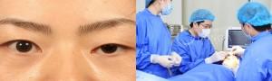Xin hỏi: Thẩm mỹ mắt to ở đâu đẹp tại Hà Nội?