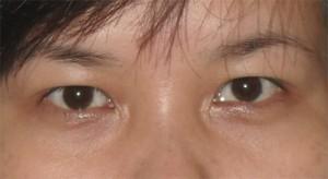 Sụp mí mắt trái có khắc phục được không?