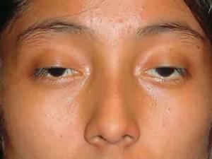 """Nguyên nhân nào khiến đôi mắt trở nên sụp mí """"xấu xí"""""""