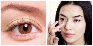 Kinh nghiệm cắt bọng mỡ mắt thành công từ khách hàng thực tế