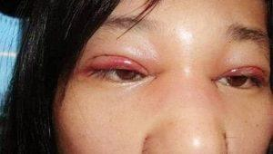 Tác hại không ngờ khi ham cắt mí mắt trên giá rẻ